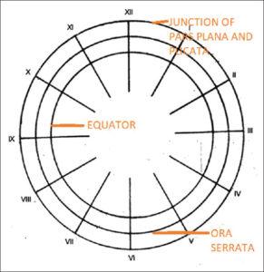 Amsler-Dubois chart